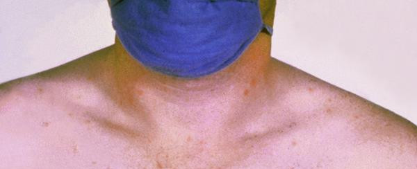 Typhoid in Tembok: confirmed case of typhoid fever at Spa Village Resort Tembok Bali